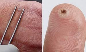 Вирусная бородавка: диагностика и методы удаления наростов