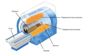 Показания к проведению магнитно-резонансной томографии селезенки