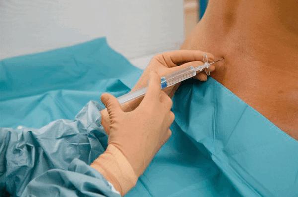 Трансуретральная резекция простаты: показания и техника операции