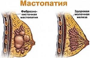 Очаговая мастопатия молочных желез: клиника и тактика лечения