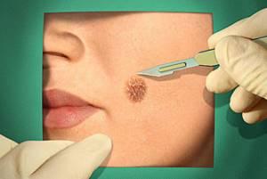 На бородавке черные точки: причины явления и методы лечения