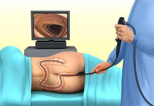 Папилломы в кишечнике: диагностика и лечение новообразований