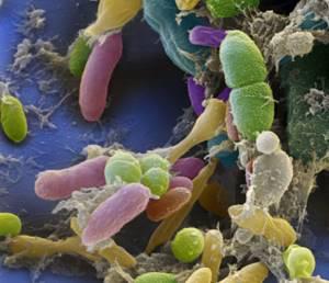 Симптомы гарднереллеза и методы лечения бактериальной патологии