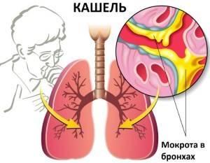 Мокрый кашель: в каких случаях опасен и какое лечение требуется