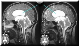 Какие патологии и нарушения выявляет МРТ сосудов головного мозга