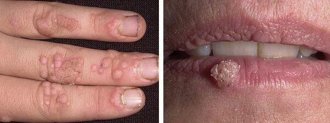 ВПЧ 66: клиническая картина и способы терапии заболевания