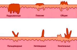 Папиллома на лобке: как проводится диагностика и лечение наростов