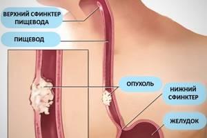 Плоскоклеточная папиллома пищевода: методы лечения патологии