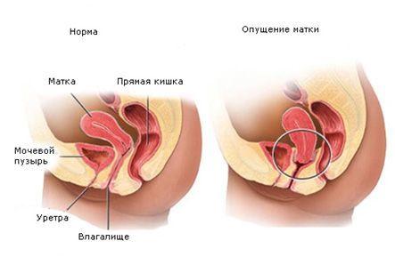 Причины опущения матки и методы диагностики и лечения нарушения