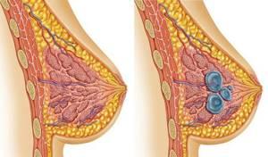 Двусторонняя диффузная фиброзно кистозная мастопатия: симптомы