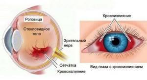 Лечение гемофтальма и профилактика развития заболевания глаз