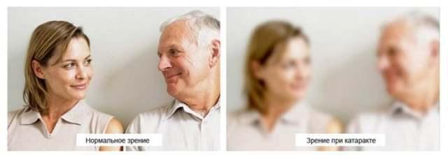 Основные методы лечения катаракты возрастной и отягощенной формы