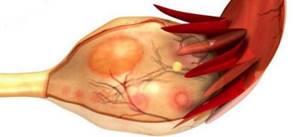 Основные симптомы и методы лечения кисты в желтом теле яичника