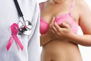 Симптомы рака груди и основные подходы к лечению заболевания