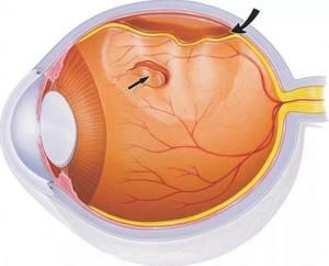Симптомы отслоения сетчатки глаза и прогноз при заболевании
