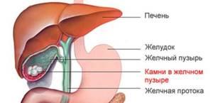 Особенности проведения ультразвукового исследования печени
