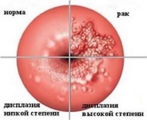 Симптомы эктопии шейки матки и методы терапии заболевания