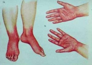 Симптомы иерсиниоза и диагностика инфекционного заболевания