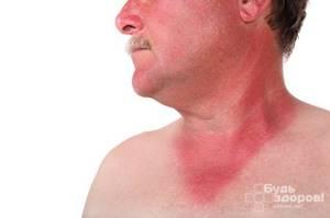 Симптомы геморрагической лихорадки и профилактика заражения