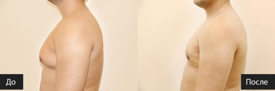 Лечение гинекомастии консервативным и оперативным методом