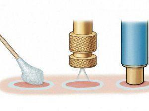 Заморозка для бородавок: правила использования и противопоказания
