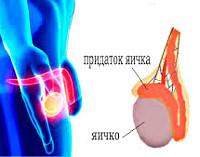 Лечение эпидидимоорхита и профилактика развития патологии