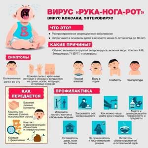 Симптомы заражения вирусом Коксаки и профилактика заболевания