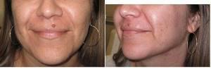 Реабилитационный период пациента после удаления бородавки лазером