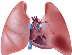 Пневмония без температуры, но с кашлем: лечение патологии