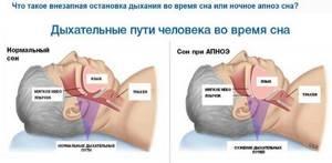 Апноэ: временная остановка дыхания во сне и необходимое лечение