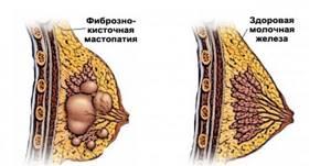 Эдас при мастопатии: состав препарата и его целебное действие
