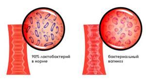 Симптомы и основные методы лечения бактериального вагиноза