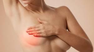 Мастопатия: операция или консервативное лечение патологии
