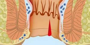 Причины возникновения и существующая классификация анальной боли