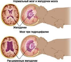 Какие патологии диагностируются с помощью нейросонографии