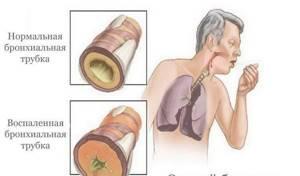 Сухой кашель и температура 38 у взрослого: как облегчить состояние