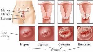 Характерные особенности эрозии шейки матки: симптомы и лечение