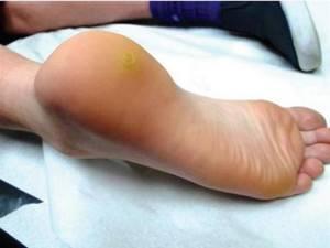 Папилломы на ногах: способы терапии и терапевтические меры