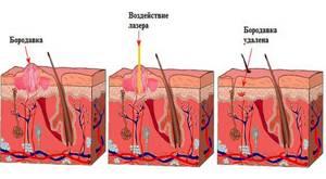 Красные бородавки на теле: причины появления и способы устранения