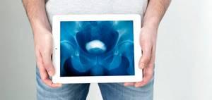При каких мужских заболеваниях требуется помощь андролога