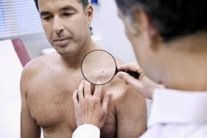 При каких заболеваниях требуется обследование дерматолога