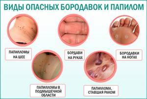 ВПЧ 68 типа у женщин: характерные особенности и профилактика