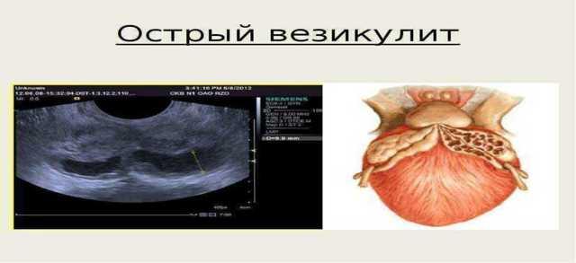 Симптомы везикулита и методы лечения воспалительного заболевания