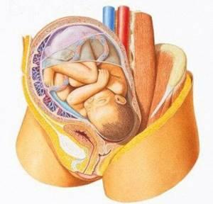 Признаки плацентарного предлежания и прогноз родоразрешения