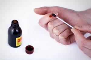 Йод от бородавок: особенности применения средства и осложнения