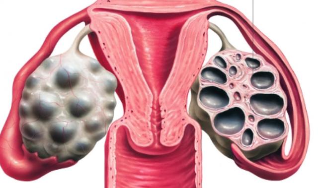 Симптомы поликистоза яичников и методы диагностики заболевания